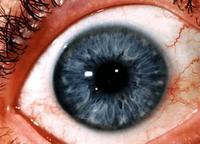 a szem deformációja