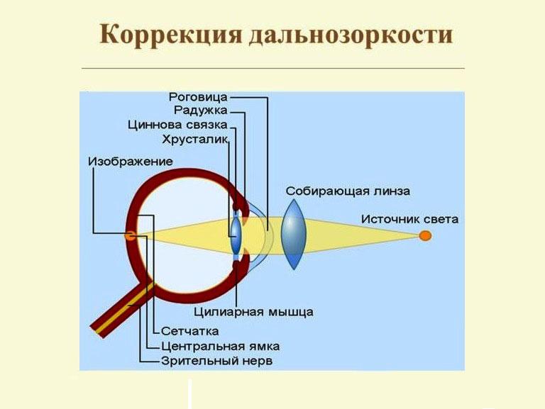 a hyperopia előrehalad, hogyan lehet megállítani)