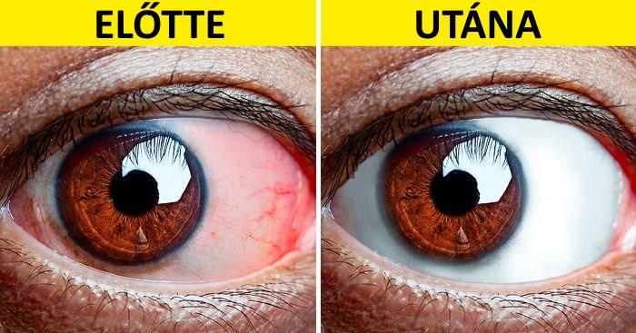 a látás romlásával