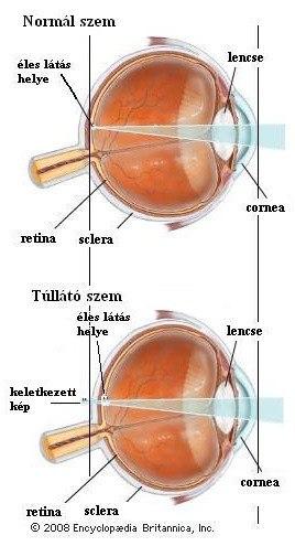 hyperopia hogyan lehet megérteni látássérült színvakság