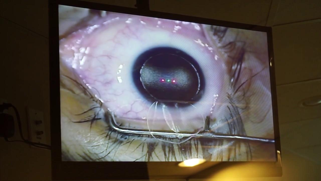 koktél a látás javítására kikapcsolva az egyik szem látását