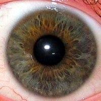 az egyik szem látása kissé romlott)