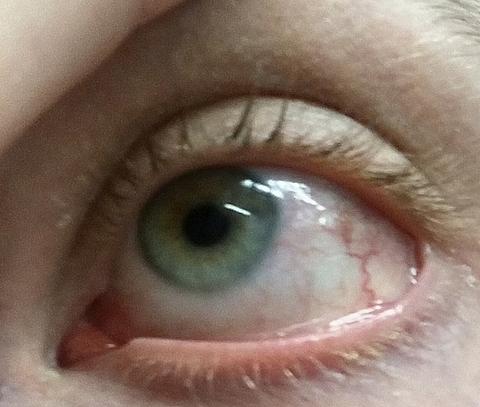 az egyik szem látásélessége 0 09