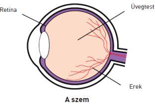 A diabéteszes retinopátia és tünetei