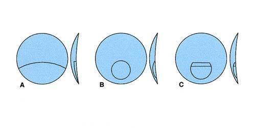 hyperopia hogyan lehet megtudni