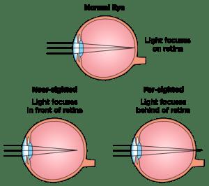Mi a myopia és a hyperopia