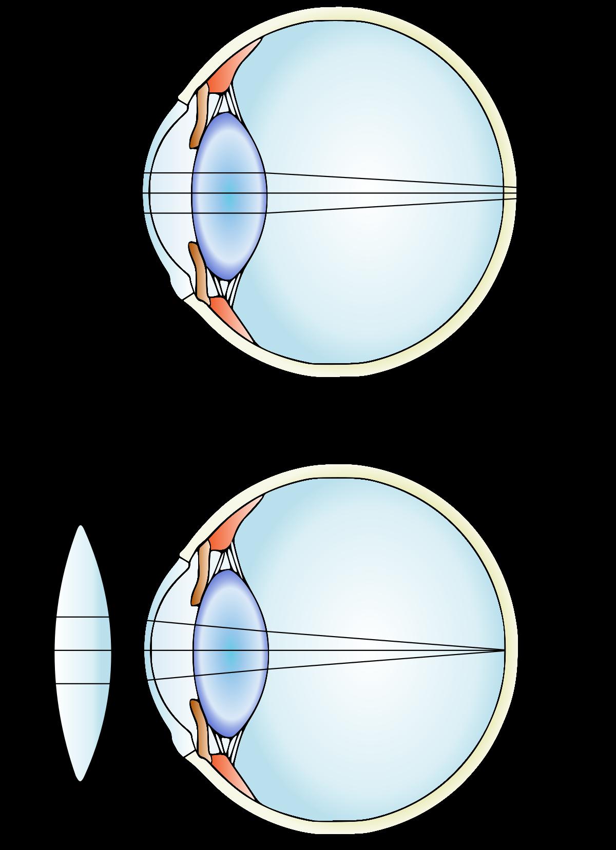 vision astigmatism myopia hyperopia xerophthalmia strabismus