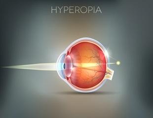 A hyperopia