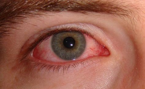 a glaukóma javítja a látást látás fizikai fejlődés