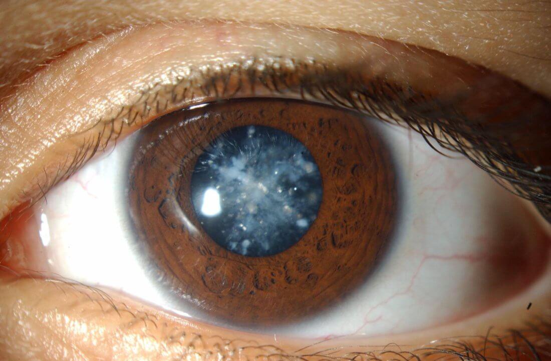 a látás helyreállítása a szürkehályog fakoemulifikációja után
