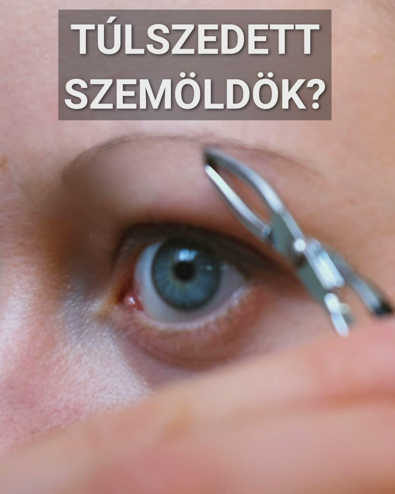 Tipp 1: Hogyan javítható a látás egy nap alatt