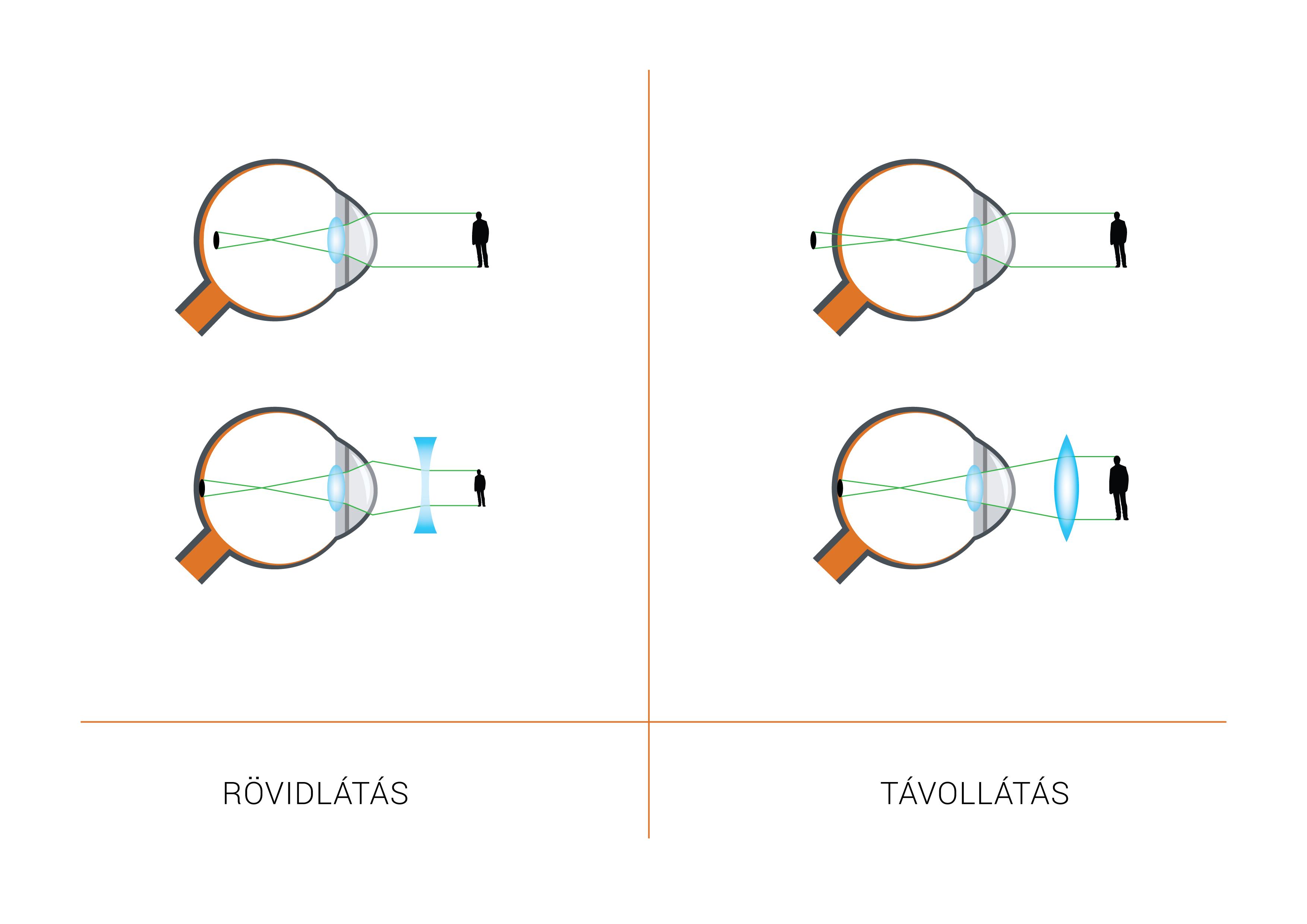 myopia egy dioptria látási és agyi problémák