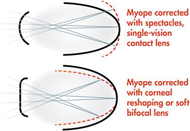 a szem myopia és hyperopia látás rövidlátás 3. fokozat