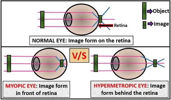 mínusz a myopia vagy a hyperopia)