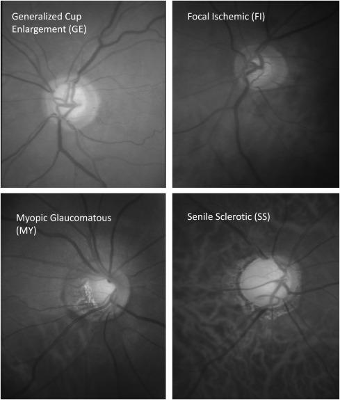 myopia glaucoma szürkehályog ál myopia