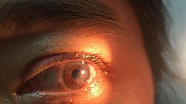 csak visszanyeri látását