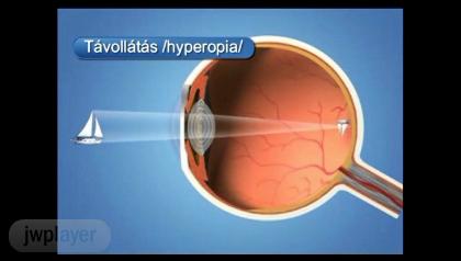 hogyan lehet a szemműtét rövidlátása