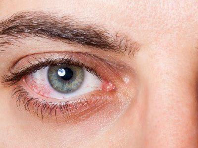 a látás függőlegesen megduplázódik kockák a látáshoz