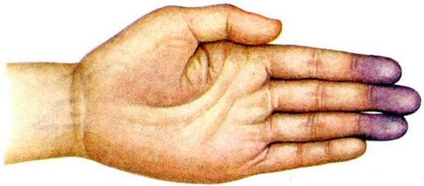 PROPRANOLOL Akadimpex 40 mg tabletta
