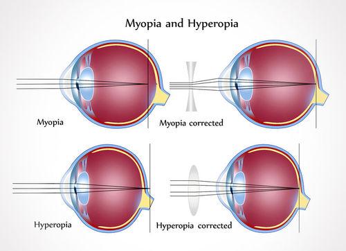 myopia teszt)