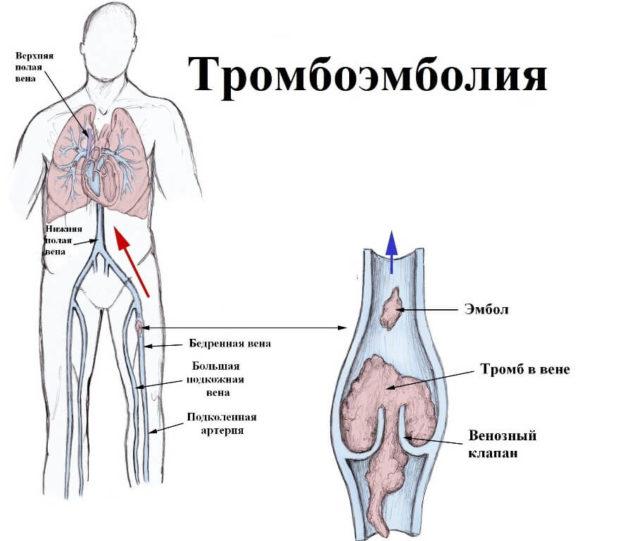 proginova és látás)