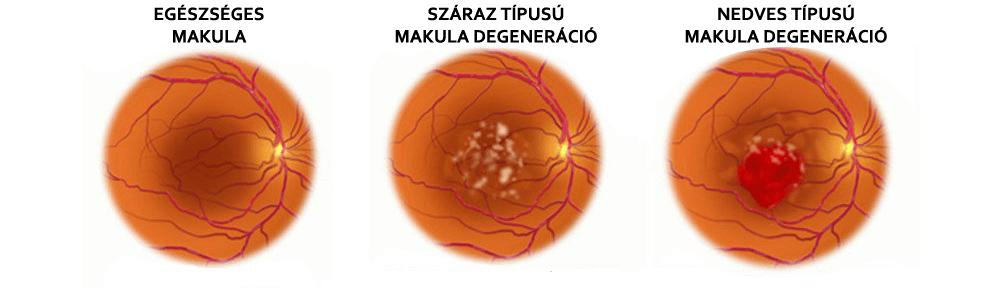 Makula degeneráció a veszélyes látásromlást okozó szembetegség