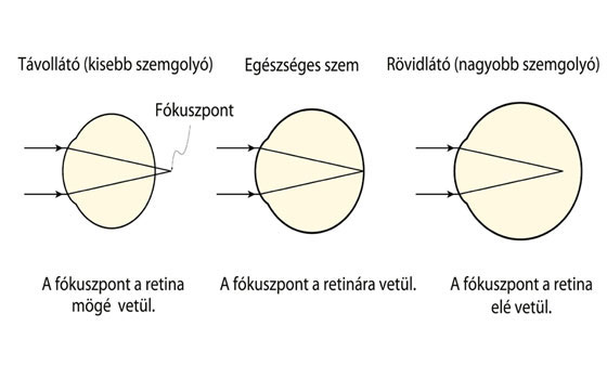 mik a látás betegségei)