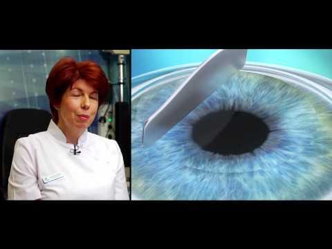 szemműtét rossz látás