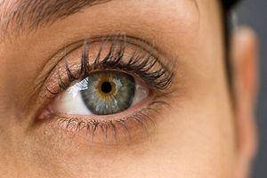 az egyik szem látása kissé romlott látás a szaruhártya égése után