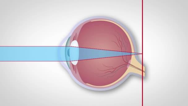 myopia és hyperopia betegség