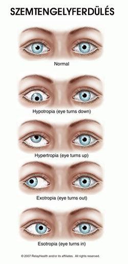 eltérő látás mindkét szemében