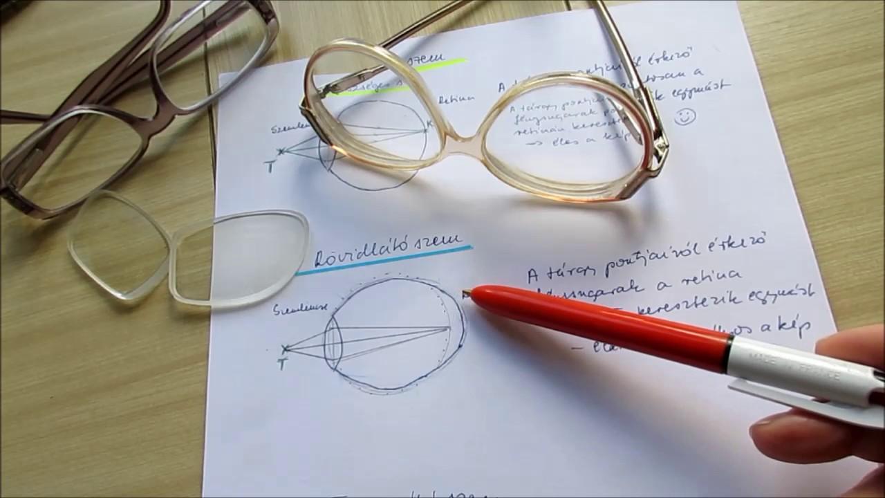oszteopata és látás mi az ember átlagos látása