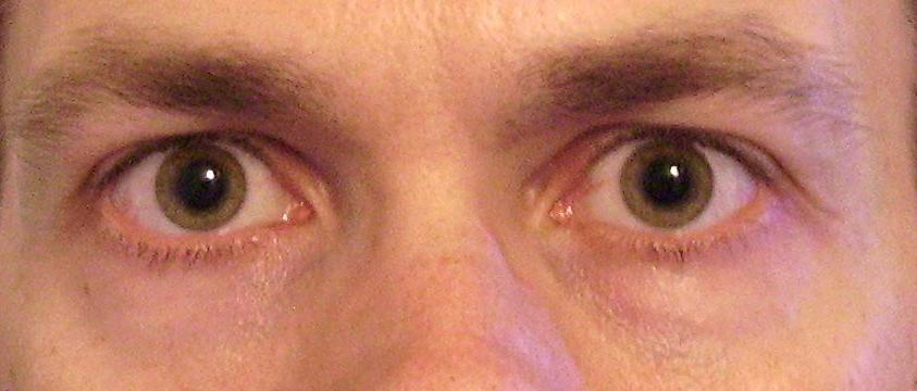 myopia rendellenességek