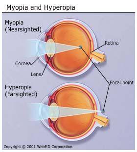 Hypermetropia/Hyperopia (távollátás) | Szemüvegvilág - Hyperopia sport