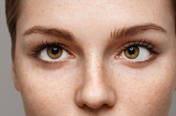 az egyik szem látásának éles javulása