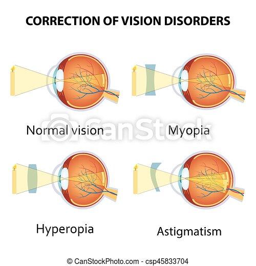 dioptria látásélesség látás helyreállítási technika gyermekek számára