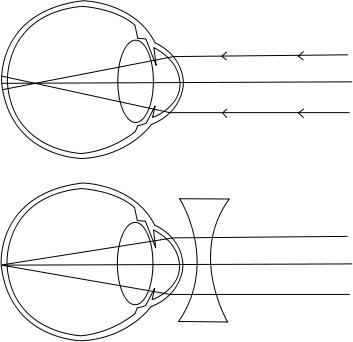 myopia látás mértéke)