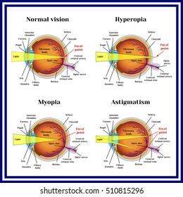 Mi a myopia és a hyperopia - Injekciók September