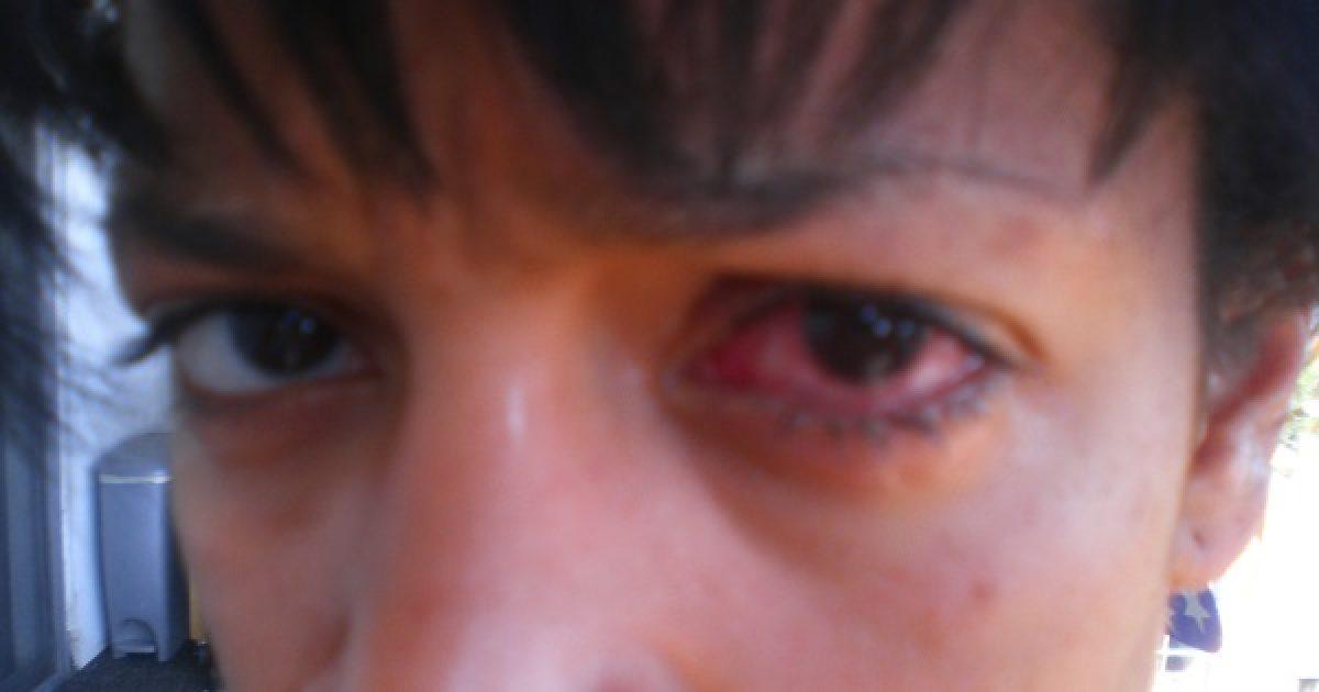szem lát orr érintés mondjuk a kilátásról