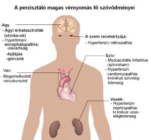 Hipertenzív válság: tünetek és tünetek, válságfajták és kezelési módszerek - Dystonia September