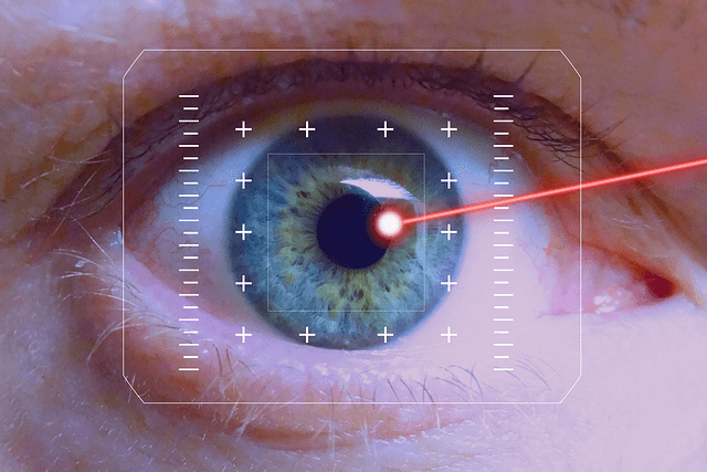 hogyan történik a lézeres látáskorrekció?