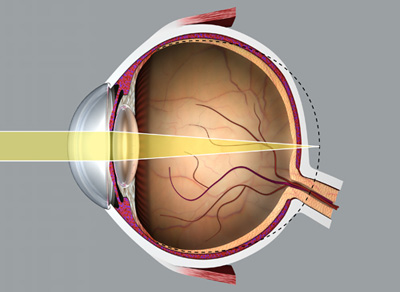hyperopia az egyik szem gyengébb szemteszt sor