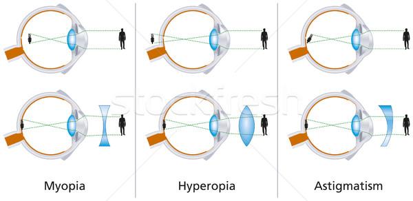 normális látású ember megvizsgál egy tárgyat szürkehályog műtét utáni látási problémák