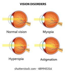 Hyperopia szemműtét, Lézeres látáskorrekció után hyperopia esetén