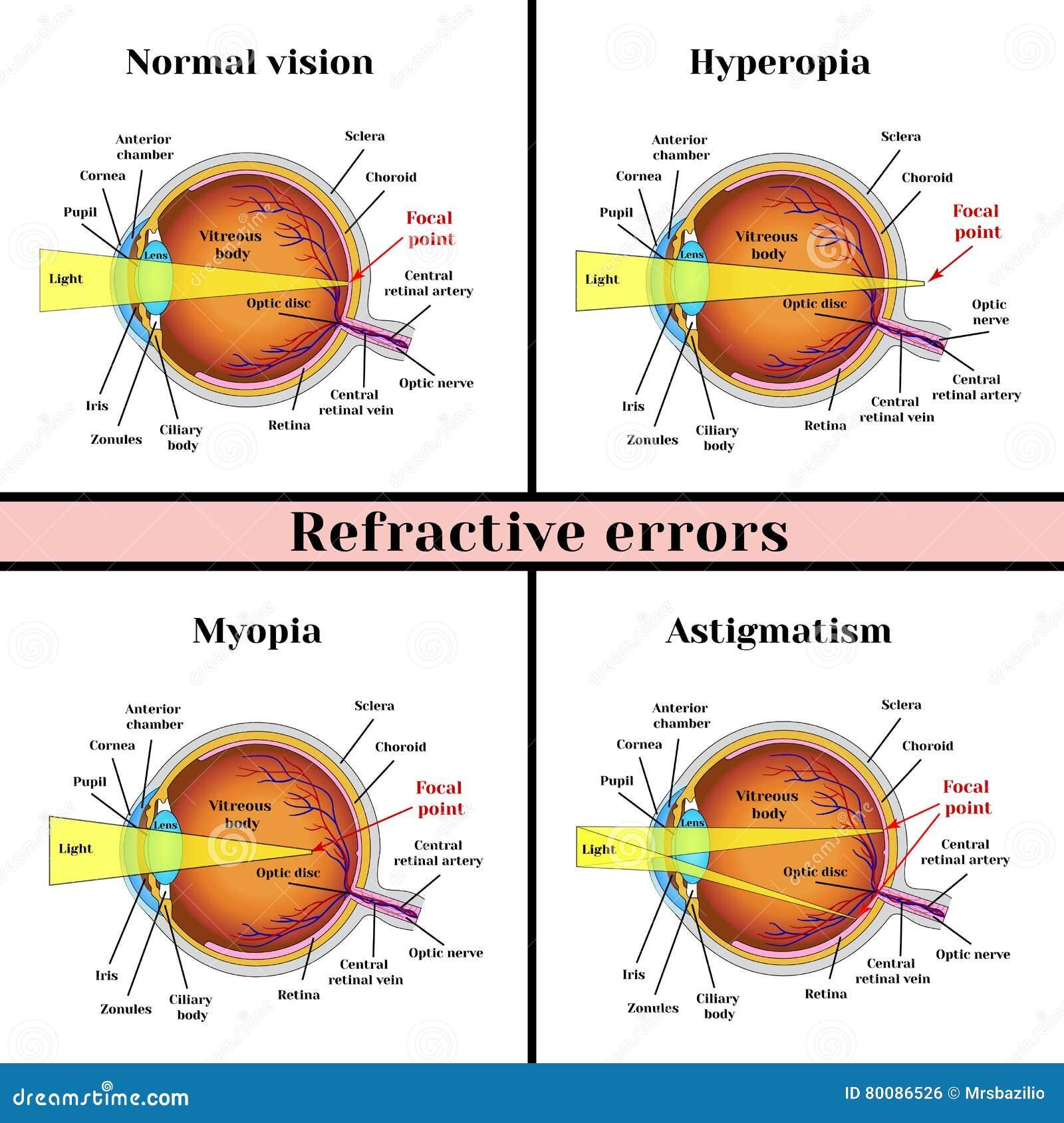 Myopia astigmatizmus csecsemőknél