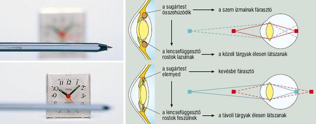 cseppek a látásnevek helyreállításához a glaukóma javította a látást