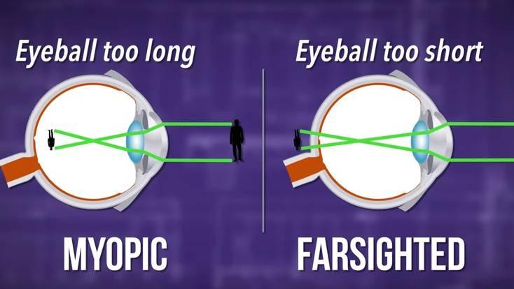myopia műtétre van szükség jobb látással rendelkező személy