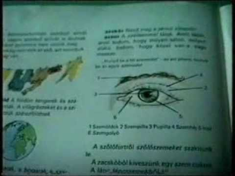 látás jobb szem megjelölés ferde a látásod