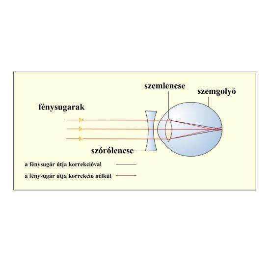 Rövidlátás, távollátás tünetei és kezelése