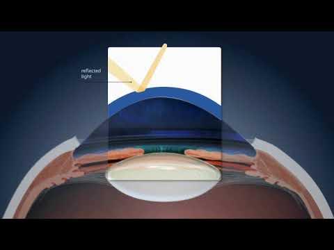 Autorefraktometria: gyors és fájdalommentes szemvizsgálat